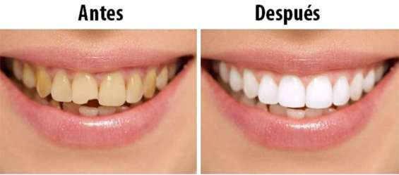 Fotos de Dentista con planes de pago 4
