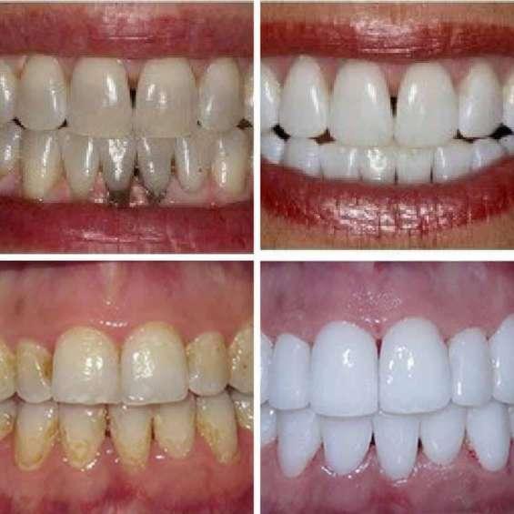 Fotos de Dentista con planes de pago 2